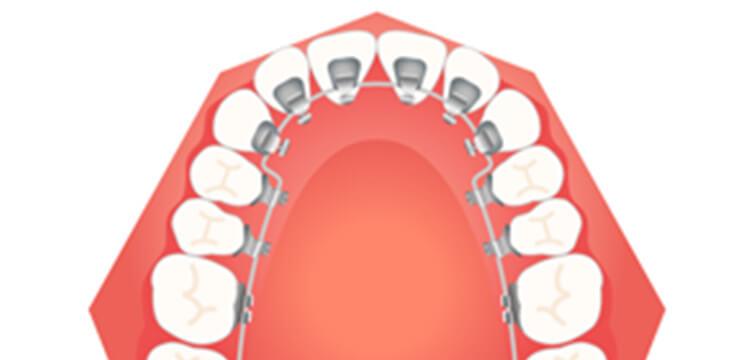 歯の裏側につける裏側矯正